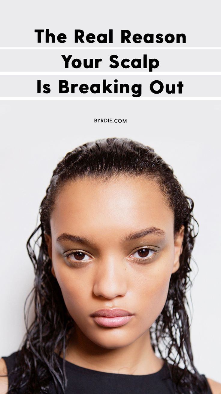 How to stop your scalp from breaking out