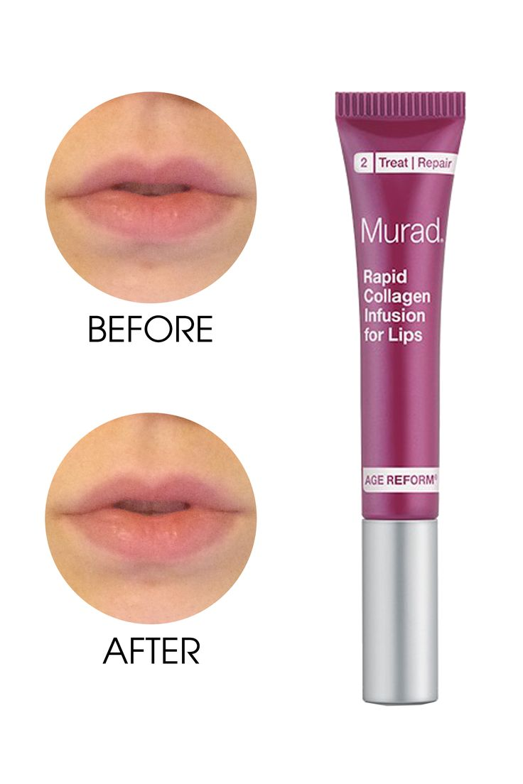 Murad Rapid Collagen Infusion for Lips, $24; murad.com I'm 23, so I don't usuall...